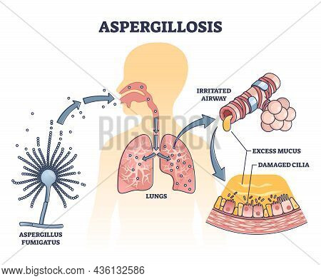 Aspergillosis Lung Infection Caused By Aspergillus, Vector Outline Diagram.irritated Airway, Excess