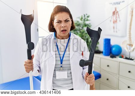 Middle age hispanic physiotherapy woman holding crutches in shock face, looking skeptical and sarcastic, surprised with open mouth