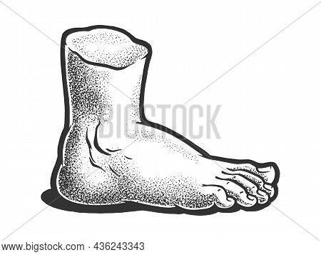 Gypsum Plaster Cast Human Foot Sketch Engraving Vector Illustration. T-shirt Apparel Print Design. S
