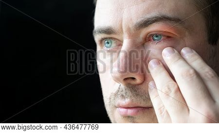 Close Up Of Sad Man Touch His Severe Bloodshot Red Blood Eye Affected By Conjunctivitis Or After All