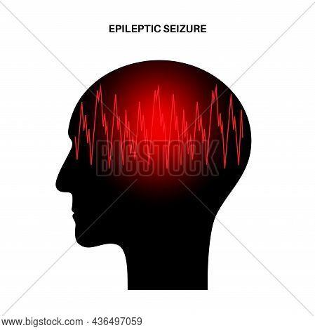 Generalized Or Partial Seizure. Epilepsy And Abnormal Brain Activity. Pain, Spasm, Migraine, Headach