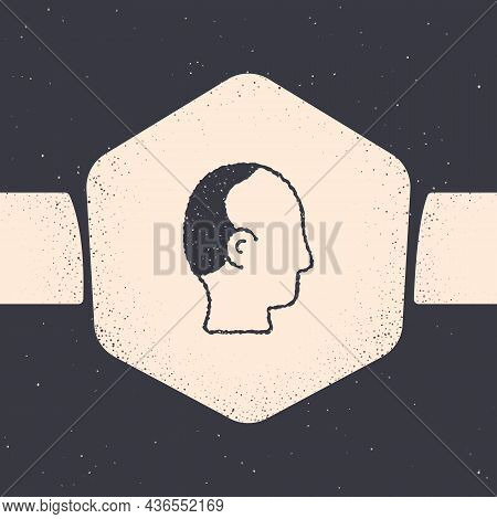 Grunge Baldness Icon Isolated On Grey Background. Alopecia. Monochrome Vintage Drawing. Vector