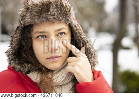 Young Woman Having Itching Eyes Health Problem. Sick Woman In Winter Snow Touching Her Sensitive Eye