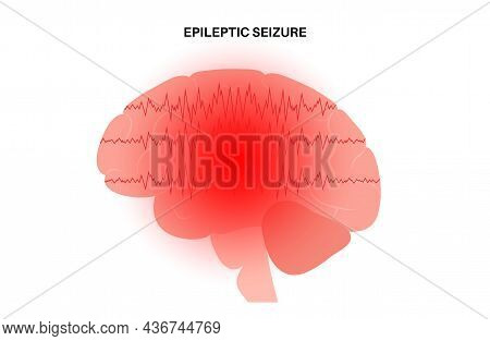 Generalized And Partial Seizure. Epilepsy And Abnormal Brain Activity. Pain, Spasm, Migraine, Headac