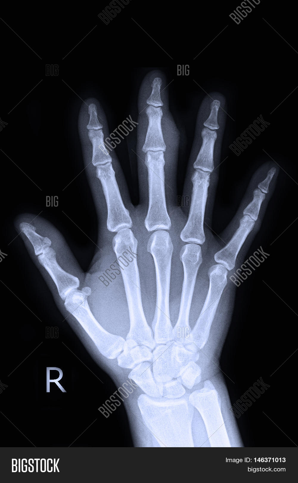 Xray Right Hand Finger Image & Photo (Free Trial) | Bigstock