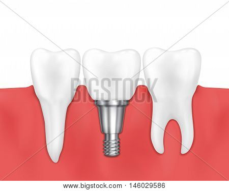 Dental implant and normal tooth vector illustration. Stomatology prosthesis, implantation implant dental