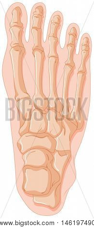 Gout in human bone illustration