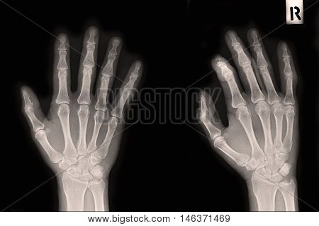 xray right hand show closed fracture index finger