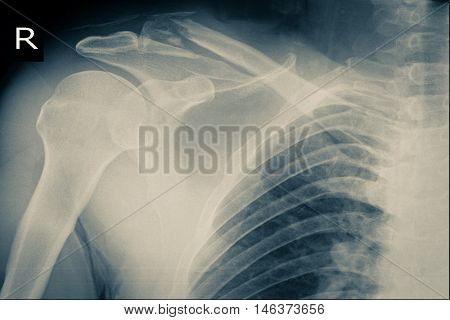 xray image show right shoulder and frozen shoulder