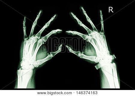 xray image show both hand and finger