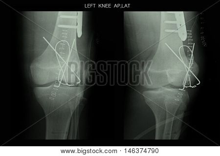 xray image show left knee and post operation