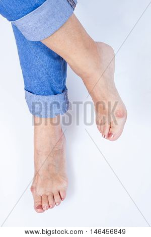 women's crossed legs with painful bunions on white