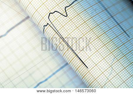 ECG graph medical textured background. Macto photo
