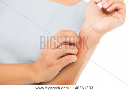 Girl scratch the itch with hand Arm Itching Concept with Healthcare And Medicine.