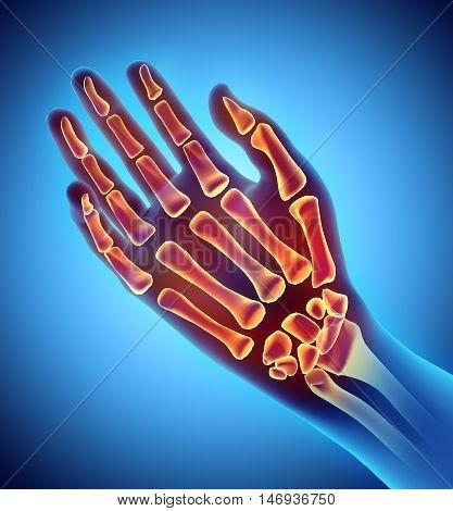 3D Illustration Of Hand Skeleton, Medical Concept.
