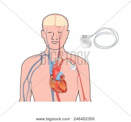 Heart Pacemaker. Human Heart Anatomy Cross Section With Working Implantable Cardioverter Defibrillat