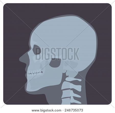 Lateral Radiograph Of Skull. X-ray Picture Or Radiographic Image Of Head, Side View. Modern Medical