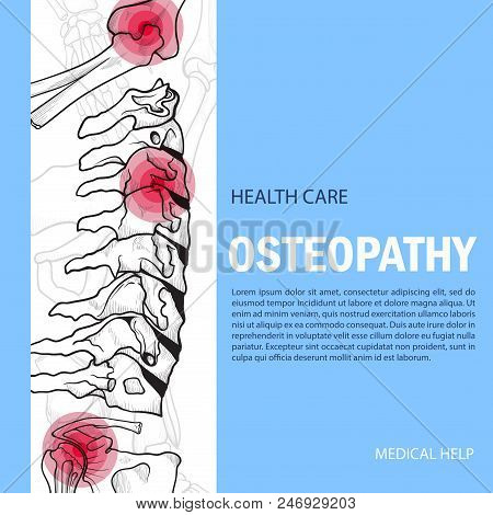 Bones Banner Mock Up. Osteopathy Treatment Poster, Medical Disorders Help With Manipulation And Mass