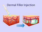 Vector illustration with cosmetic filler or Dermal fillers on light blue background poster