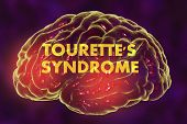 Tourette's syndrome, medical concept, 3D illustration. A neuropsychiatric disorder characterized by a spectrum of tic disorders poster