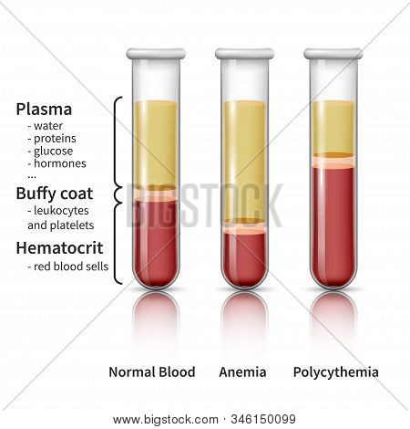 Blood Analysis Infografics. Realistic Glassware Tubes Filled Blood In Layers. Plasma And Hematocrit,