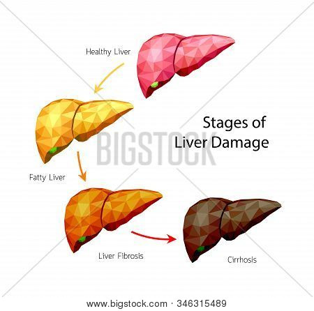 Stages Of Liver Damage, Polygonal Art Style. Liver Disease. Healthy, Fatty, Fibrosis And Cirrhosis.