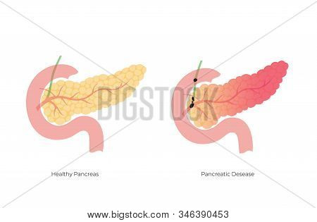 Vector Isolated Illustration Of Ill Pancreas Anatomy. Pancreatitis And Gallstones. Human Digestive S