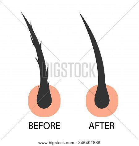 Hair Care Serum Follicle Diagnostics Before And After Treatment. Anatomy Skin, Medical Human, Epider