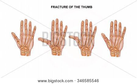 Illustration Of The Fracture Of The Thumb. Osteosynthesis Of The Fingers