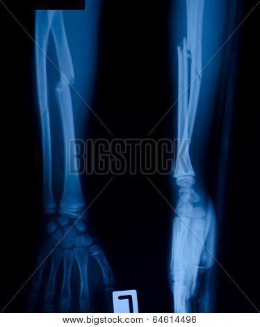 X ray film of distal radias fracture