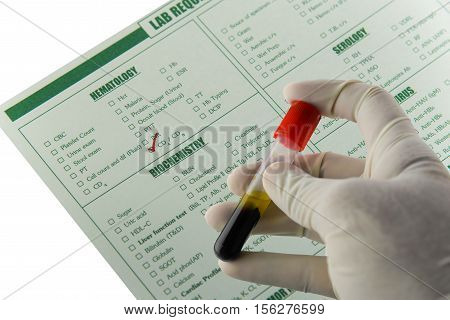 Immunology blood requisition for HIV in laboratory,Specimen in EDTA tube blood collection,Lavender color blood sample collection tubes.(have clipping path)