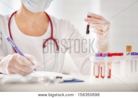Close up of doctor arms holding blood test tube and making notes. Woman is sitting at table in lab