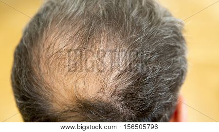 closeup of head of a balding man
