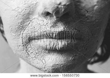 Woman Face With Cracked Skin