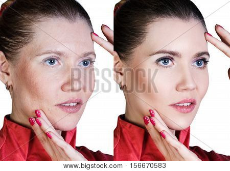 Middle aged woman with aging singes, wrinkles, blemishes. Before and after cosmetic procedure.