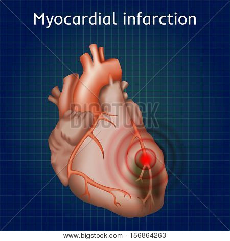 Myocardial infarction. Heart attack, pain. Damaged heart muscle. Anatomy illustration. Red image, dark blue science background