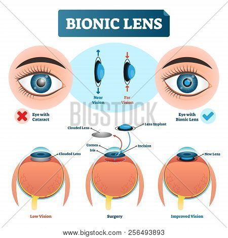 Bionic Lens Vector Illustration. Labeled Medical Scheme With Cataract. Isolated Diagram With Implant