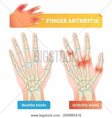 Finger Arthritis Vector Illustration. Educational Example Of Chronic Skeleton And Hand Pain, Inflamm