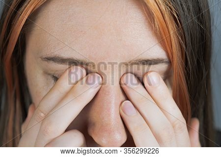 Touching Eyes With Fingers - Concept Of Bringing Virus Or Infection. Woman Rubs Her Face With Hands,