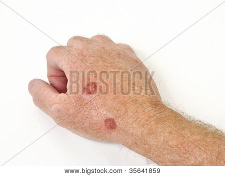 Cryotherapy treatment to remove precancerous cells from a hand poster
