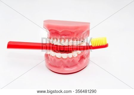 Orthodontic Model And Dentist Tool - Teeth Model With Ceramic Braces On An Artificial Jaws Closeup.