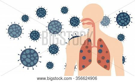 Corona Virus Or Covid-19  In Human In Respiratory System And Lungs