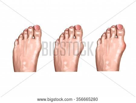 Illustration Of The Arthritis Of The Foot, Pain