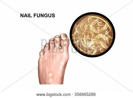 Illustration Of The Fungus Of The Toe