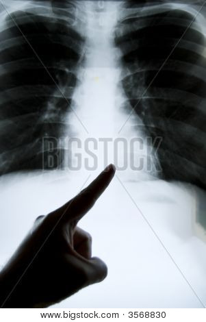 Chest X-Ray Pointing