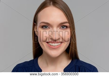 Beautiful Girl Smiling And Surprised, White Teeth With Braces. Dental Care. Beauty Happy Woman Smile