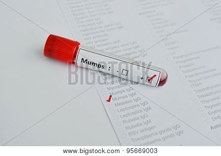 Mumps virus positive