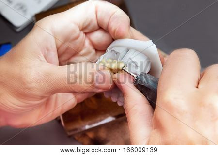 Technical shots of model on a dental prothetic laboratory.Dentist hands with plaster model electric burr and ceramic dentures