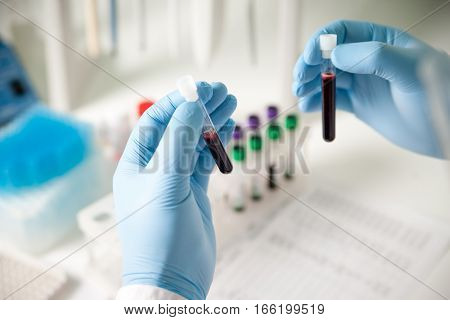 Two test tubes with blood for analysis and research in medical research lab near the test results, test tubes and other medical equipment