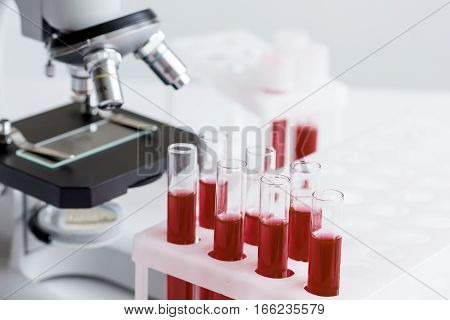 blood in glass tubes on background of microscope in the laboratory